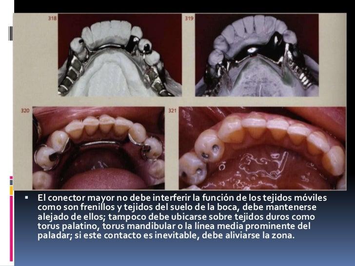 El conector mayor no debe interferir la función de los tejidos móviles como son frenillos y tejidos del suelo de la boca, ...