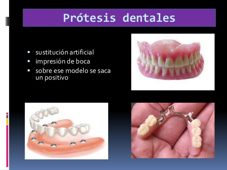 Prótesis dentales<br /><br />sustitución artificial<br />impresión de boca<br />sobre ese modelo se saca un positivo<br />