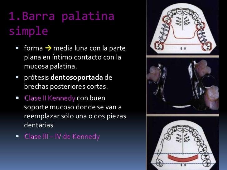 1.Barra palatina simple<br />forma  media luna con la parte plana en íntimo contacto con la mucosa palatina.<br />prótesi...