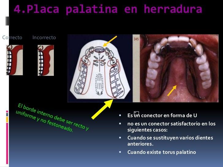 4.Placa palatina en herradura<br />34<br />Correcto         Incorrecto<br />Es un conector en forma de U<br />no es un con...