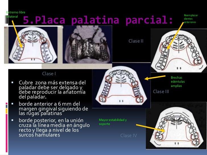 5.Placa palatina parcial:<br />Extremo libre bilateral<br />Reemplazar dientes anteriores<br />Clase II<br />Clase I<br />...