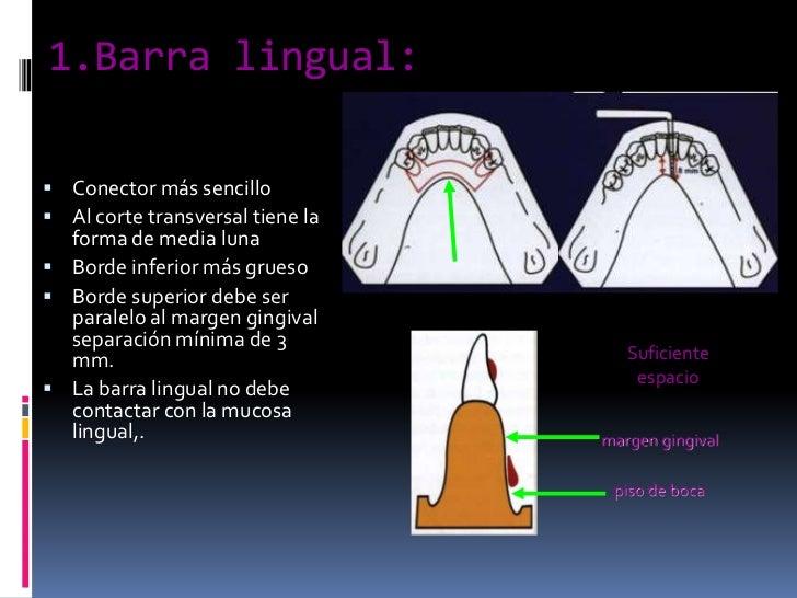 1.Barra lingual:<br />Conector más sencillo <br />Al corte transversal tiene la forma de media luna <br />Borde inferior m...