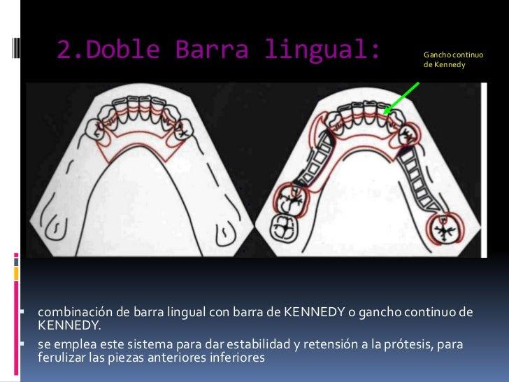 2.Doble Barra lingual:<br />Gancho continuo de Kennedy<br />combinación de barra lingual con barra de KENNEDY o gancho con...