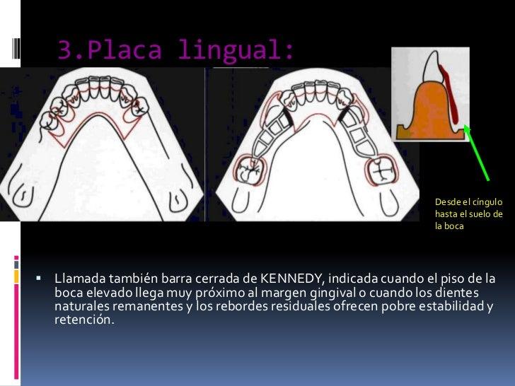 3.Placa lingual:<br />Desde el cíngulo hasta el suelo de la boca<br />Llamada también barra cerrada de KENNEDY, indicada c...