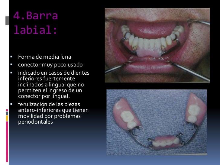 4.Barra labial:<br />Forma de media luna<br />conector muy poco usado<br />indicado en casos de dientes inferiores fuertem...