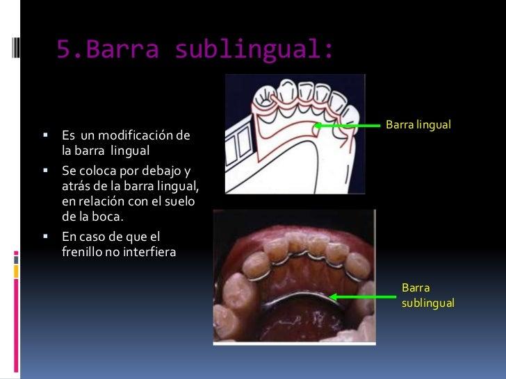 5.Barra sublingual:<br />Barra lingual<br />Es  un modificación de la barra  lingual<br />Se coloca por debajo y atrás de ...