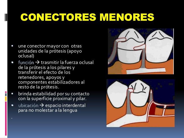 CONECTORES MENORES<br />une conector mayor con  otras unidades de la prótesis (apoyo oclusal)<br />función trasmitir la f...