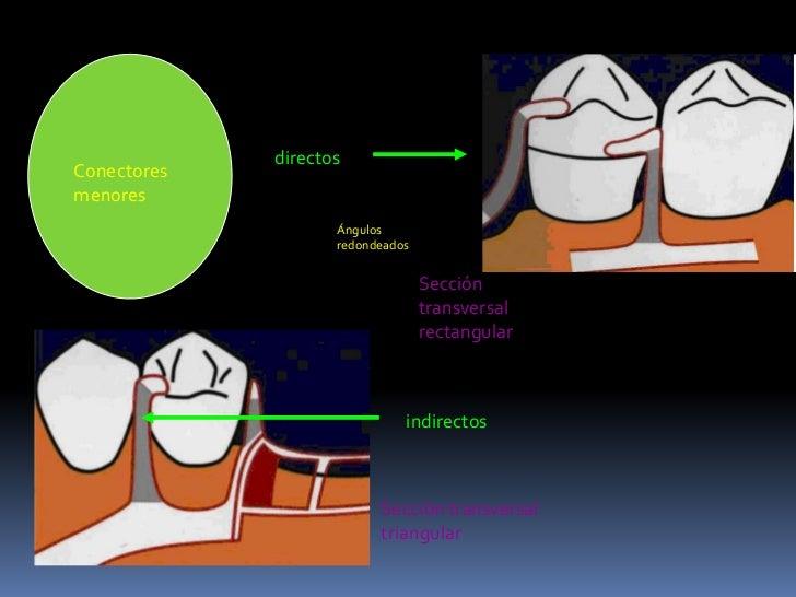 directos<br />Conectores menores<br />Ángulos redondeados<br />Sección transversal rectangular<br />indirectos<br />Secció...