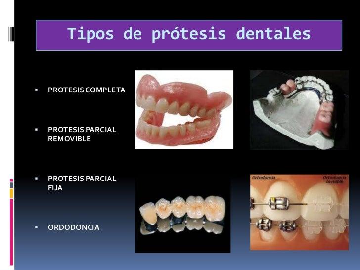 Tipos de prótesis dentales <br />PROTESIS COMPLETA<br />PROTESIS PARCIAL REMOVIBLE <br />PROTESIS PARCIAL FIJA<br />ORDOD...