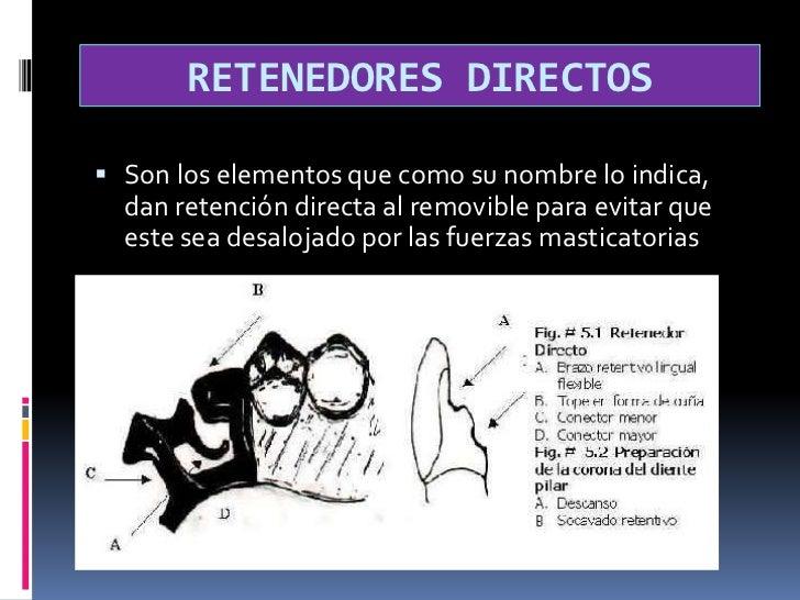 RETENEDORES DIRECTOS<br />Son los elementos que como su nombre lo indica, dan retención directa al removible para evitar q...