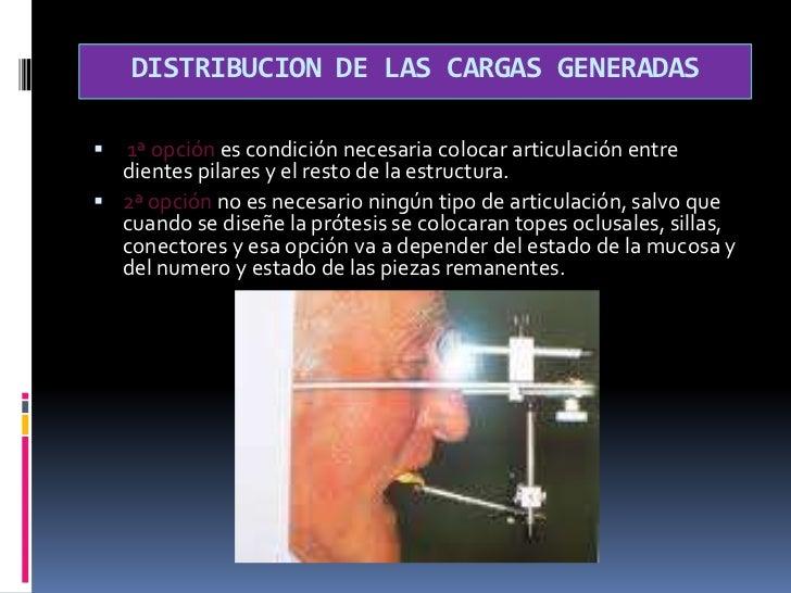 TIPOS DE BASES O SILLAS<br />VENTAJAS METALICAS.<br />conductividad térmica.<br />mayor exactitud y estabilidad dimensiona...