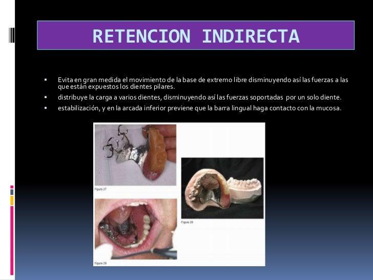 DISTRIBUCION DE LAS CARGAS GENERADAS<br />1ª opción es condición necesaria colocar articulación entre dientes pilares y e...
