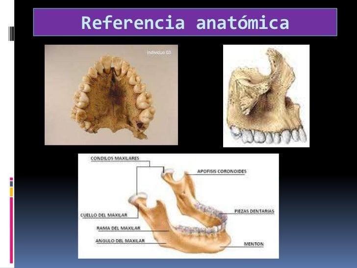 Referencia anatómica <br />
