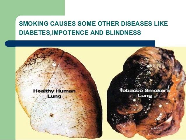 respiratory diseases ppt