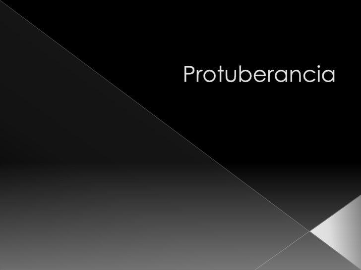 Protuberancia<br />
