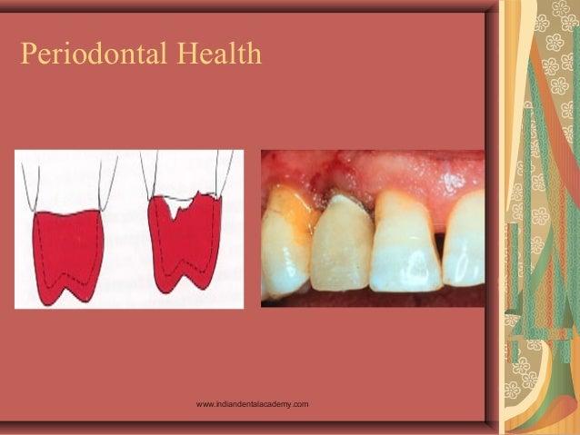 Periodontal Health www.indiandentalacademy.com