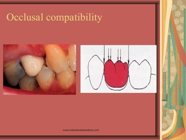 Occlusal compatibility www.indiandentalacademy.com