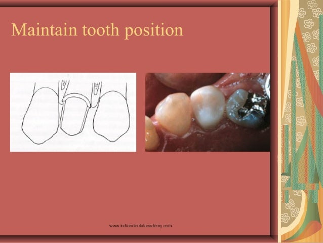 Maintain tooth position www.indiandentalacademy.com