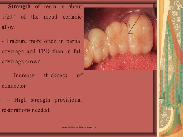 - Strength of resin is about 1/20th of the metal ceramic alloy. - Fracture more often in partial coverage and FPD than in ...