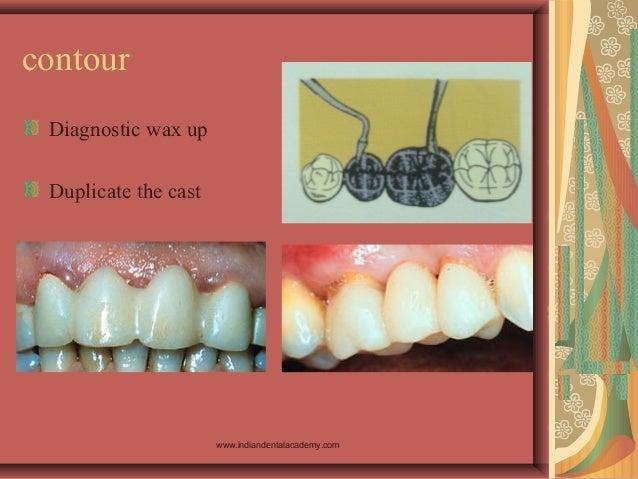 contour Diagnostic wax up Duplicate the cast www.indiandentalacademy.com