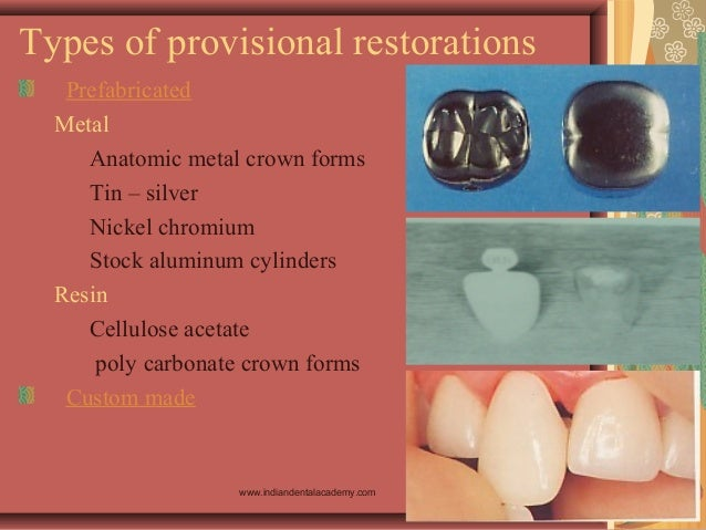 Types of provisional restorations Prefabricated Metal Anatomic metal crown forms Tin – silver Nickel chromium Stock alumin...