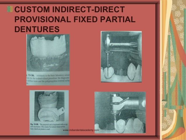 CUSTOM INDIRECT-DIRECT PROVISIONAL FIXED PARTIAL DENTURES www.indiandentalacademy.com