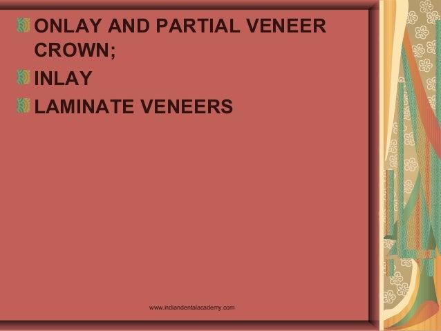 ONLAY AND PARTIAL VENEER CROWN; INLAY LAMINATE VENEERS www.indiandentalacademy.com
