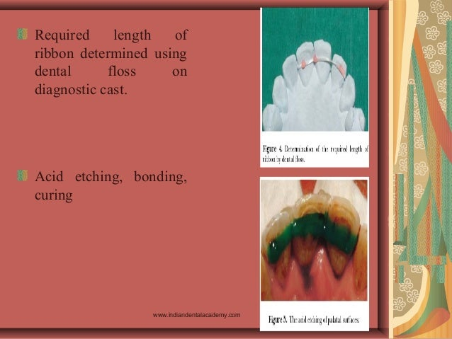 Required length of ribbon determined using dental floss on diagnostic cast. Acid etching, bonding, curing www.indiandental...