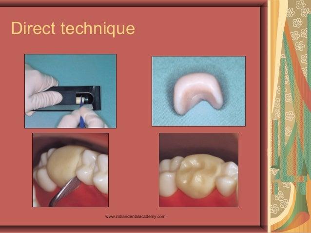 Direct technique www.indiandentalacademy.com