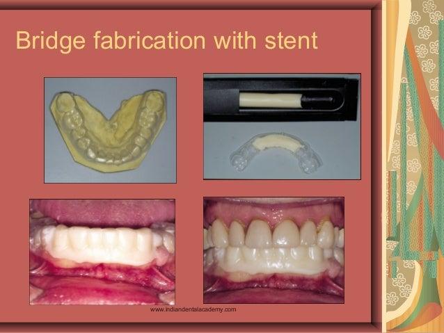 Bridge fabrication with stent www.indiandentalacademy.com