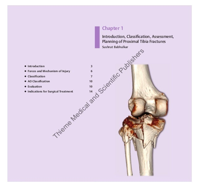 Guidelines In Fracture Management Proximal Tibia By Babhulkar