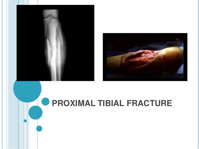 PROXIMAL TIBIAL FRACTURE