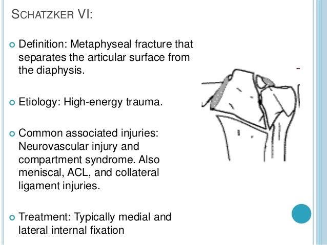 proximal tibia fracture, Cephalic Vein