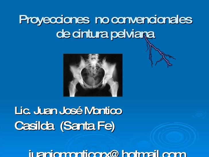 Proyecciones  no convencionales de cintura pelviana <ul><li>Lic. Juan José Montico </li></ul><ul><li>Casilda  (Santa Fe) <...