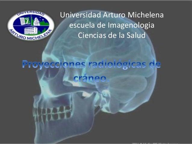 Universidad Arturo Michelena  escuela de Imagenologia  Ciencias de la Salud