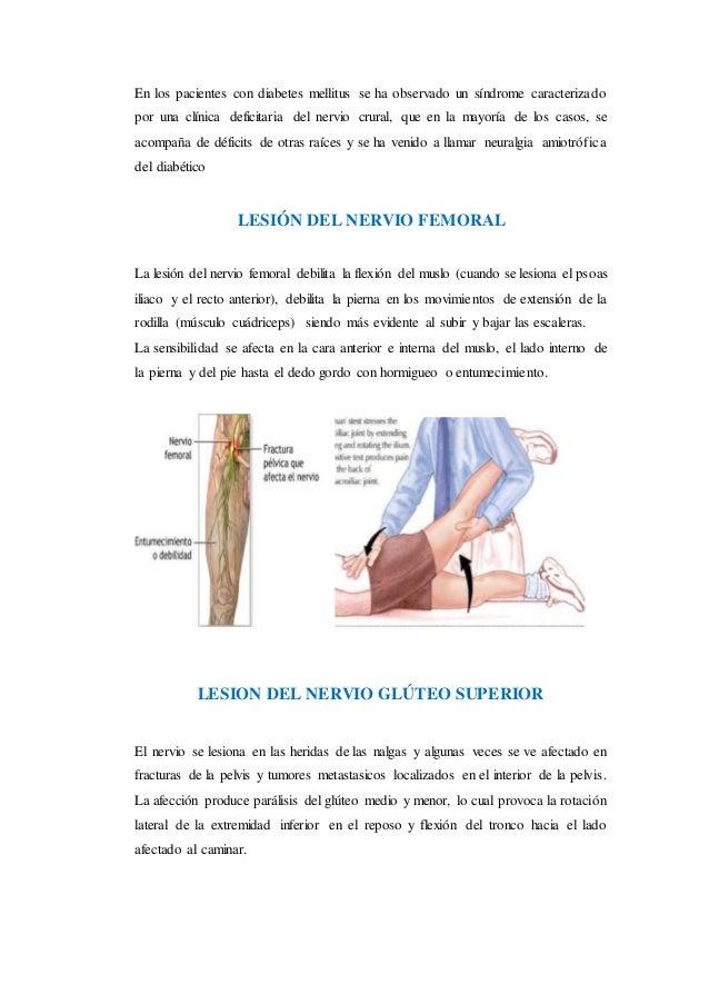 lesiones del plexo lumbar