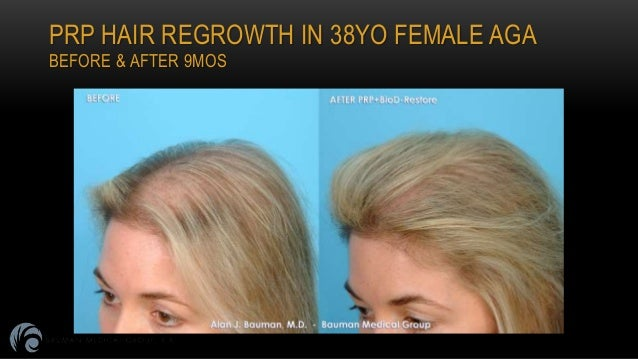 Prp Platelet Rich Plasma For Hair Regrowth By Dr Alan Bauman