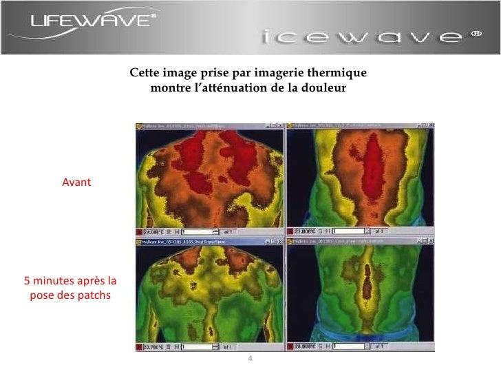 Cette image prise par imagerie thermique<br />montre l'atténuation de la douleur<br />Avant<br />5 minutes après la pose d...