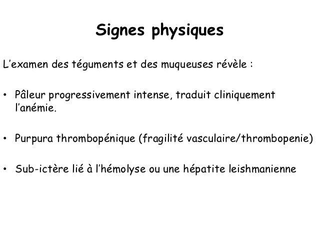 • Syndrome inflammatoire    • VS accélérée (> 50 mm à la 1ère heure)    • CRP souvent positive• Protéinogramme    • Hyperg...