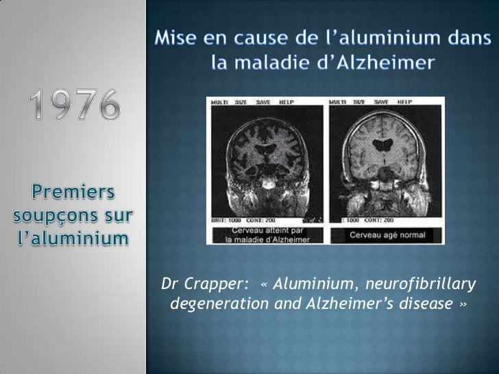 Mise en cause de l'aluminium dans <br />la maladie d'Alzheimer<br />Dr Crapper: «Aluminium, neurofibrillarydegeneration ...
