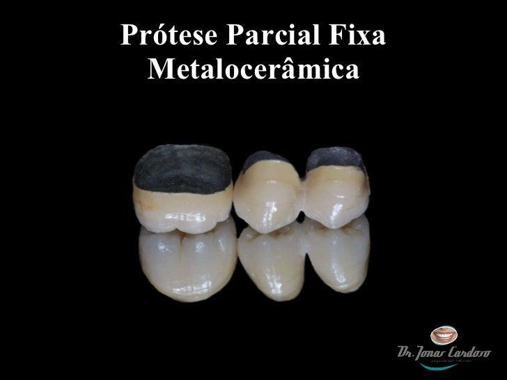 Prótese Parcial Fixa Metalocerâmica