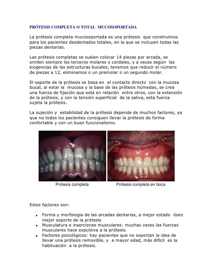 PRÓTESIS COMPLETA O TOTAL MUCOSOPORTADA<br />La prótesis completa mucosoportada es una prótesis que construimos para los...