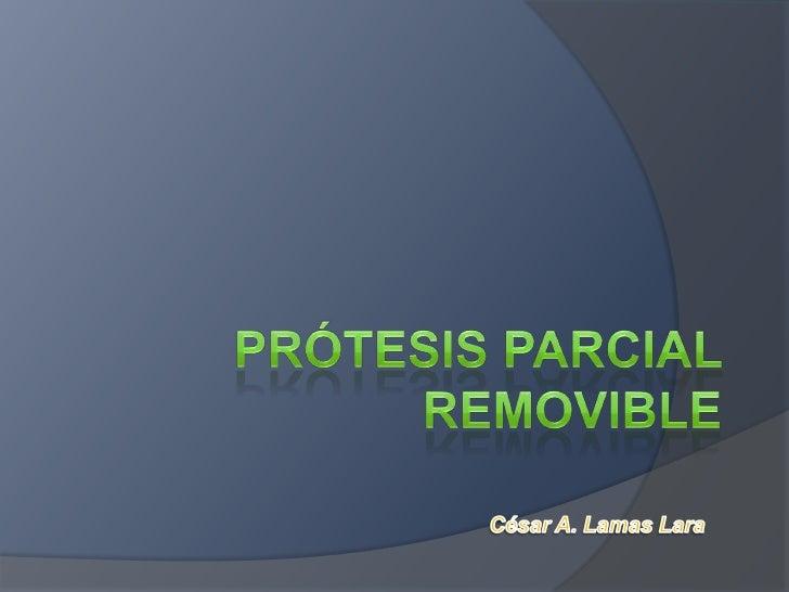 Prótesis Parcial Removible<br />César A. Lamas Lara<br />