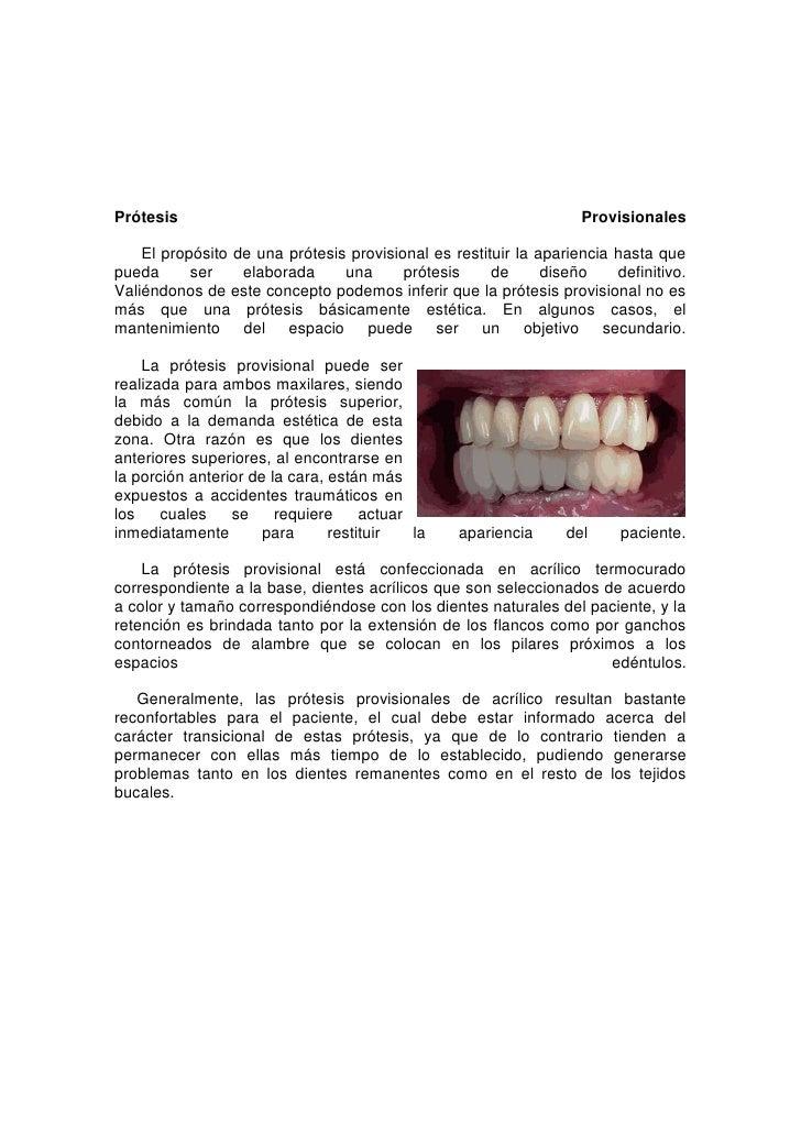 28575001534160Prótesis Provisionales      El propósito de una prótesis provisional es restituir la apariencia hasta que pu...