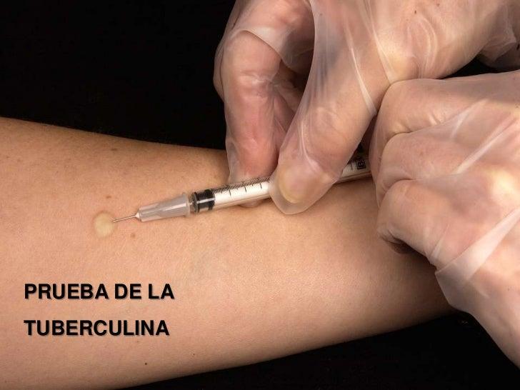 PRUEBA DE LATUBERCULINA    1