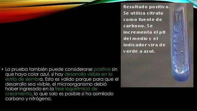 Ureasa COLOR: ROSADO INDICADOR: ROJO FENOL SUSTRATO PRINCIPAL: UREA