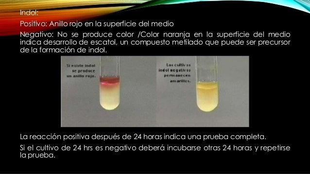 • Descarboxilación de ornitina: mide la capacidad enzimática de un organismo para descarboxilar un aminoácido para formar ...