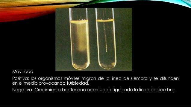 • Producción de indol: El triptófano es un aminoácido que puede ser oxidado por ciertas bacterias para formar tres metabol...