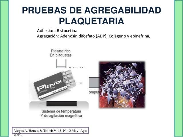 SÍNDROME DE BERNARD-SOULIERAdenosina   Colágeno   Epinefrina   Ristocetina