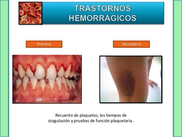 Congénitos                             Adquiridos                       ALTERACIONES DE LA HEMOSTASIA     Primaria        ...